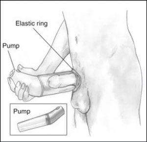 Vacuum erection device for erectile dysfunction