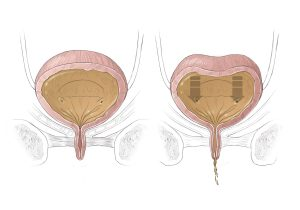 Overactive Bladder in women at Colorado Urology